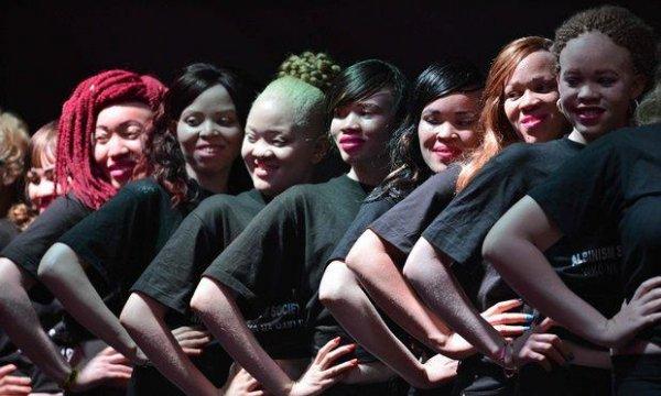 В Зимбабве впервые выбрали «Мисс альбинос»