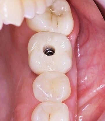 Имплантанты зубов по самым доступным ценам